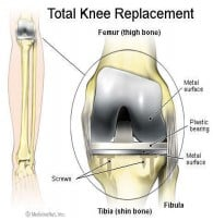 Total Knee Replacement Graphic