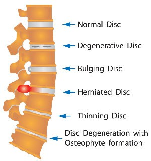 Diagram of normal disc, degenerative disc, bulging disc, herniated disc, thinning disc, and disc degeneration with Osteophyte formation
